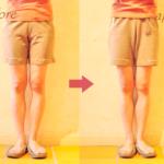 骨盤・O脚矯正の変化をハッキリと見せるコツ